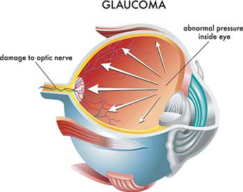 Glaucoma in Bloomsburg